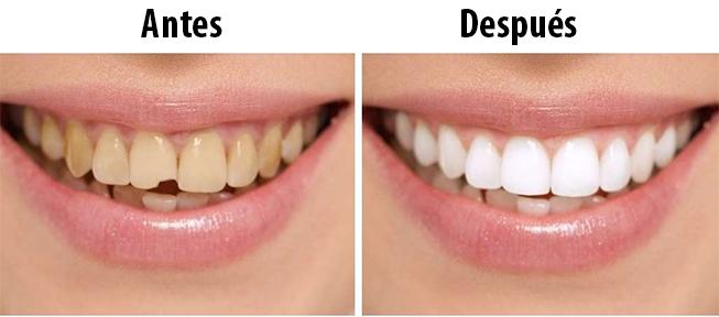 clinica-dental-antonio-perez-bas-odontologia-estetica-1