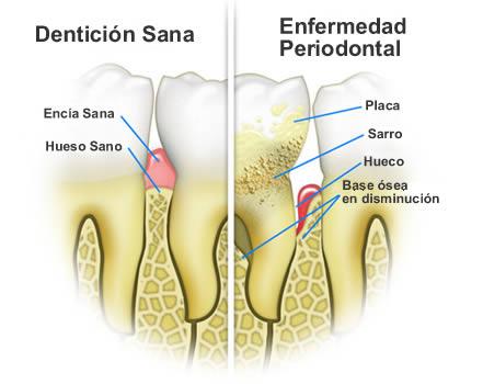 Periodoncia e higiene